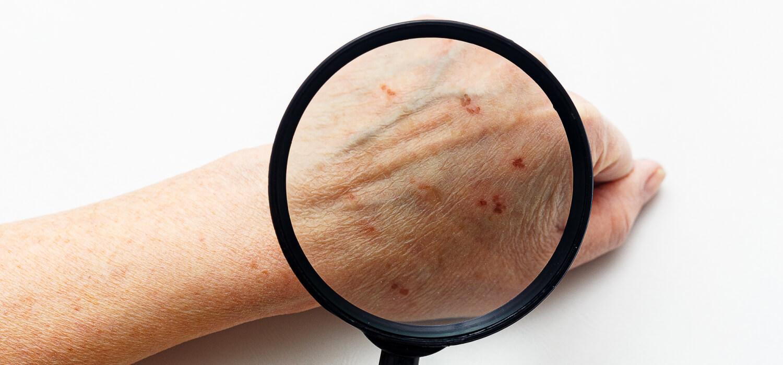 Лечение дерматита