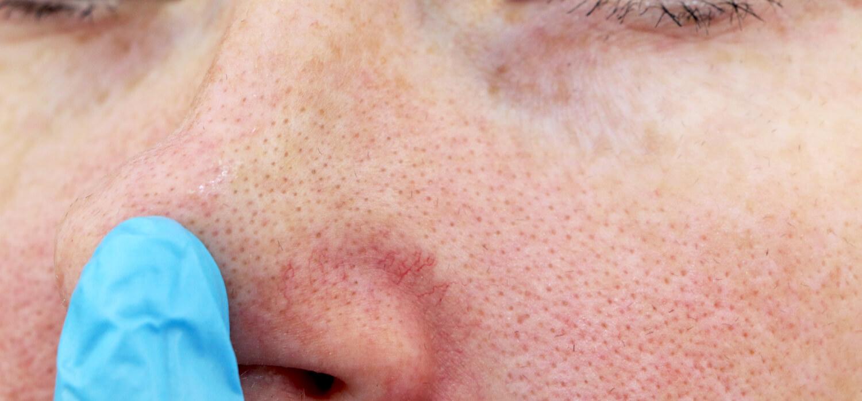 удаление сосудистой сеточки на лице